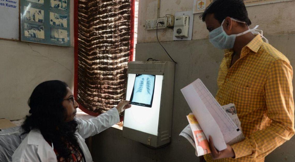 Vacuna contra la tuberculosis disminuiría los efectos de posibles virus.