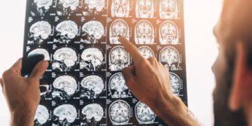 El nuevo coronavirus podría afectar el cerebro