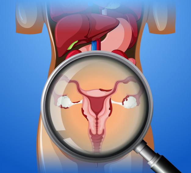 Tipos de cáncer de ovario