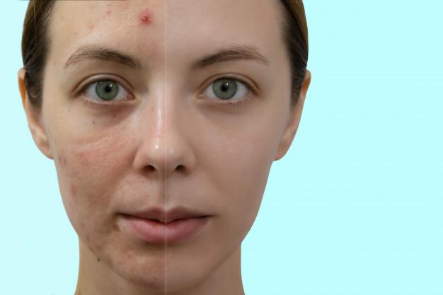 Causas del acné en adultos