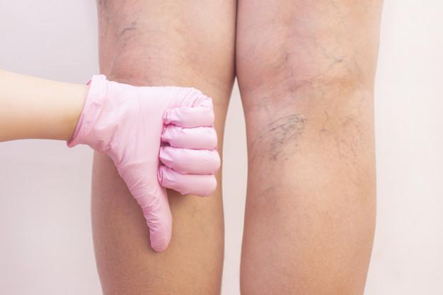 Ejercicios para piernas con varices