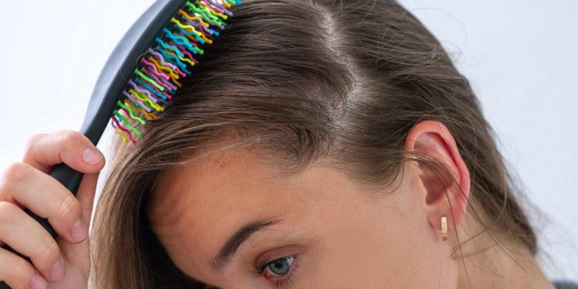 Alopecia Androgénica en mujeres