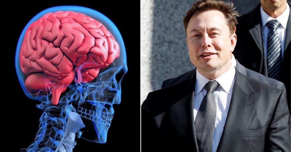 Neuralink del empresario Elon Musk