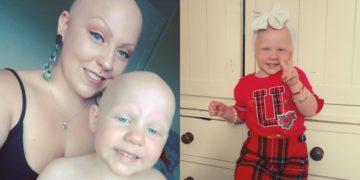 Madre e hija con alopecia