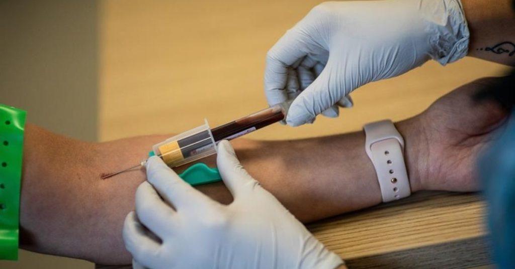 reinfección y perdida de inmunidad contra el coronavirus