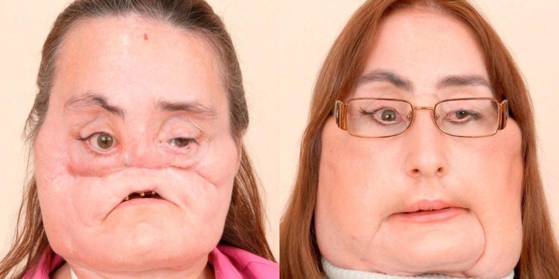 Connie Culp, trasplante de rostro