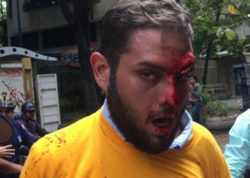 Juan Requesens cumple dos años detenido