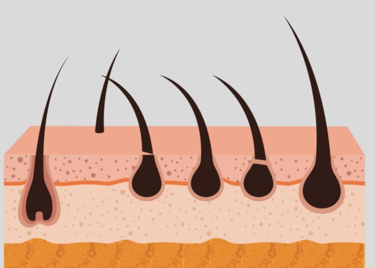 Dolor en el cuero cabelludo