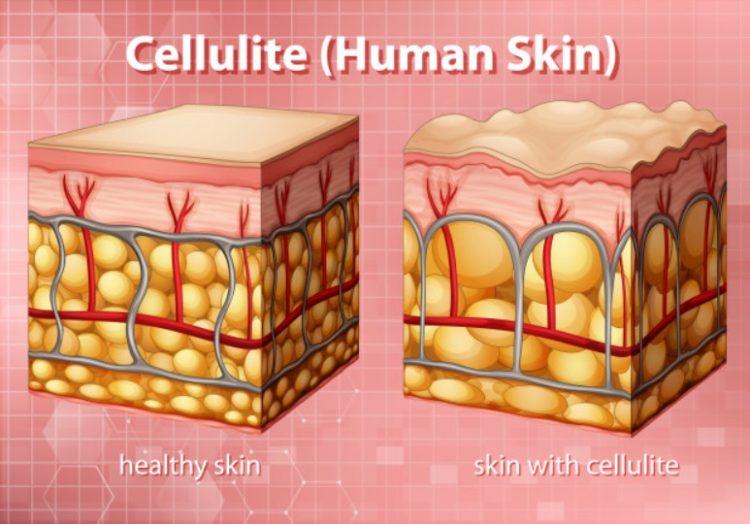 Atrévete a combatir la celulitis con estos masajes para celulitis caseros
