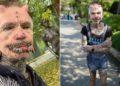 Rolf Buchholz, el hombre con más modificaciones en el cuerpo