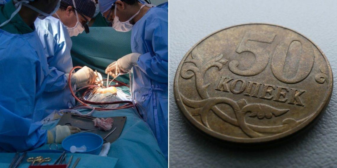 extraen una moneda de la nariz de un hombre en Rusia