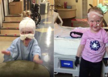 Rawkee Hunt: la Niña con quemaduras en su rostro da una lección