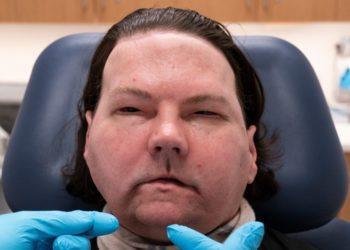 Joe DiMeo, la primera persona en recibir un trasplante exitoso de cara y manos