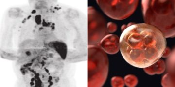 paciente con cáncer linfoma de Hodking se cura con el covid-19
