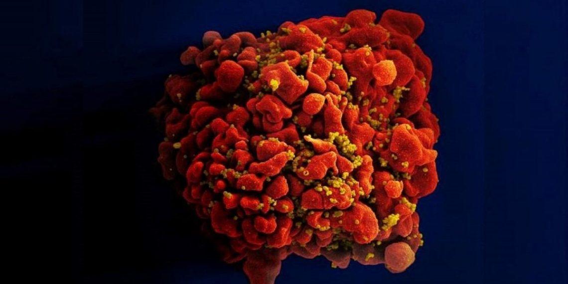 vacuna contra el virus del Sida