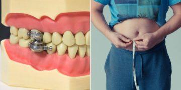 Desarrollan dispositivo de dientes para perder peso y combatir la obesidad